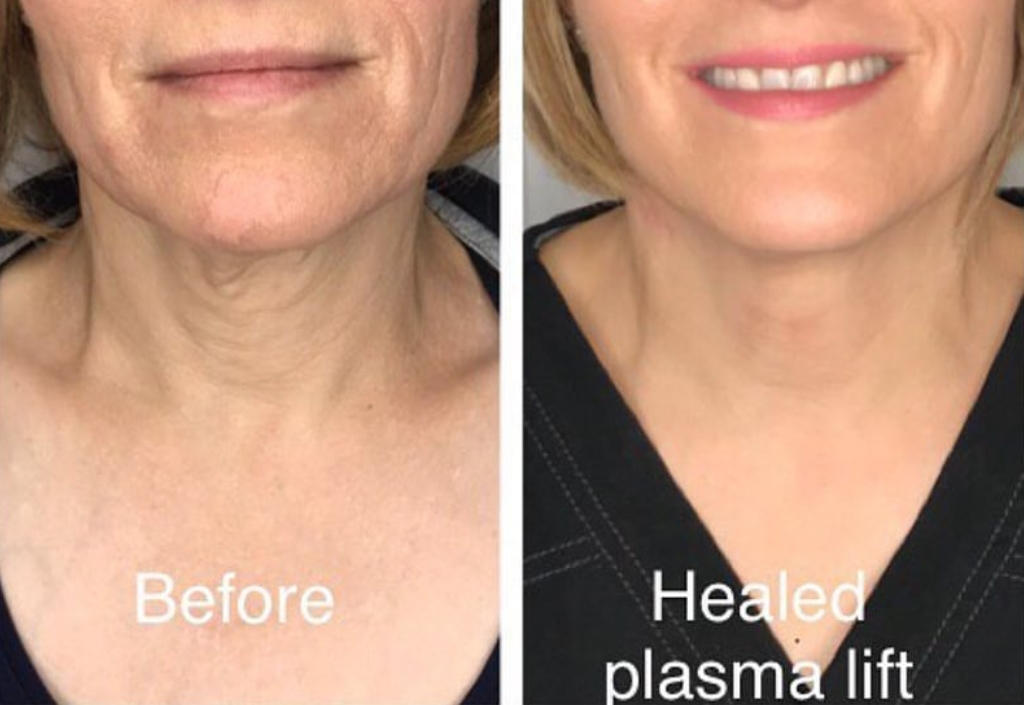 Body Sugaring Works1Plasma Lift Skin Tightening-Fibroblast