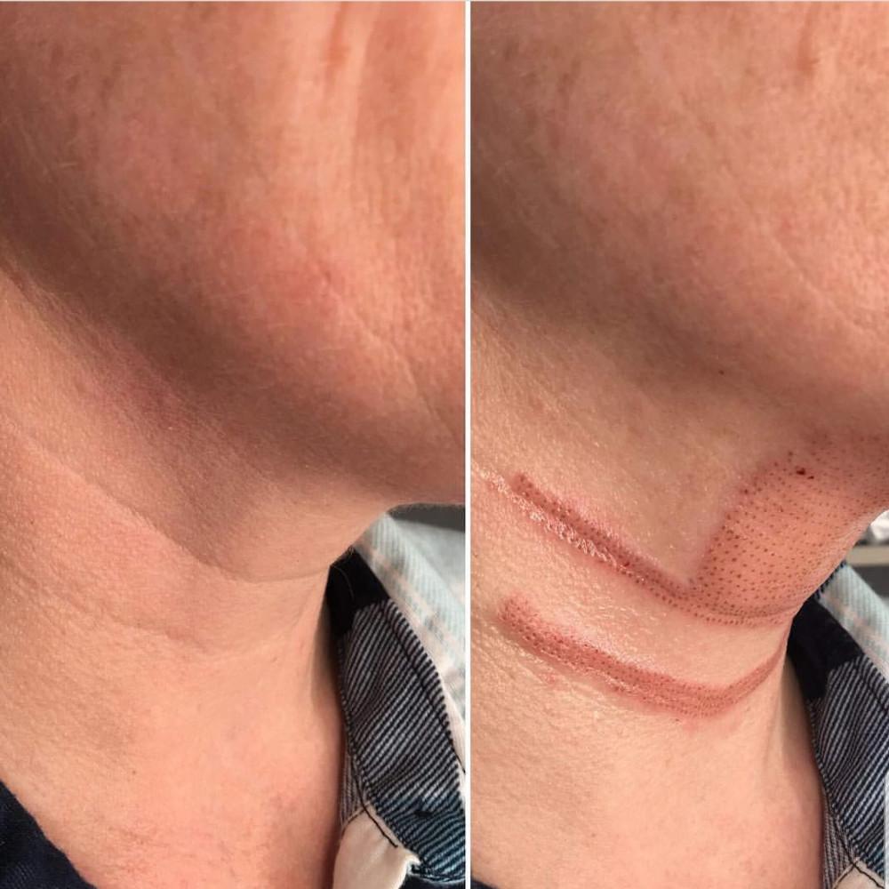 Body Sugaring Works1Plasma Lift Skin Tightening-Fibroblast